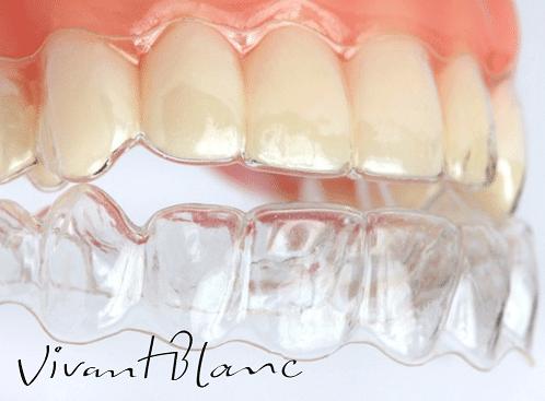 http://www.vivantblanc.com.br/wp-content/uploads/2016/03/alinhador-ortodontico.png