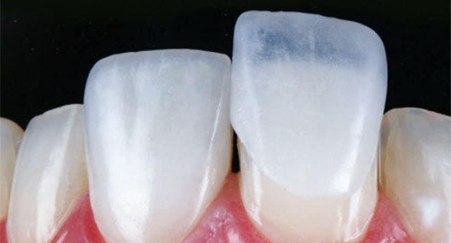 As famosas lentes de contato dental!
