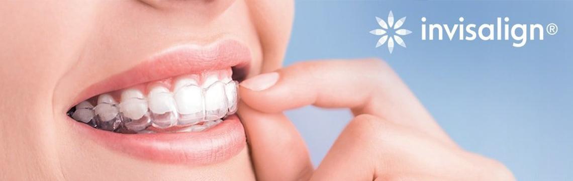 Invisalign-Vivant Blanc Odontologia